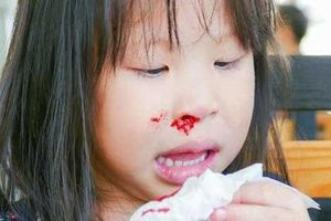 Từ vụ cháu bé nhập viện vì chảy máu cam ngày nắng nóng, cảnh báo điều cha mẹ cần làm để không hại con
