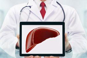 7 cách trị mảng bám động mạch đơn giản mà hiệu quả