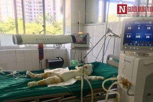 Nghi án người tình phóng lửa đốt nhà ở Sơn La: Thêm một nạn nhân tử vong
