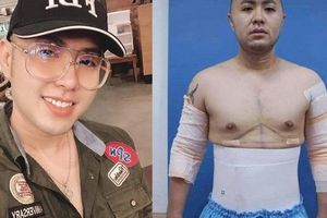Akira Phan giảm 4kg sau ca phẫu thuật hút mỡ toàn thân