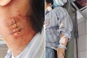 Hà Nội: Bác sĩ Bệnh viện Bạch Mai 'mổ nhầm' gây biến chứng cho bệnh nhân?