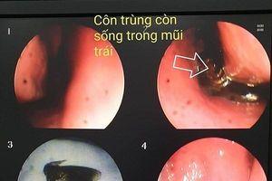 Bác sĩ gắp ra từ mũi nữ bệnh nhân một con bướm nhỏ còn giãy dụa