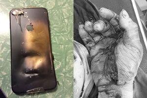 Những lần iPhone phát nổ khiến người dùng hoảng hốt