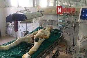 Tin mới về sức khỏe nạn nhân trong nghi án người tình phóng hỏa giết người ở Sơn La