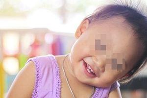Vì sao trẻ con hay tự giật tóc của mình?