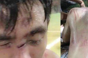 Hà Nội: Đánh đối phương nhập viện khi giao lưu bóng đá