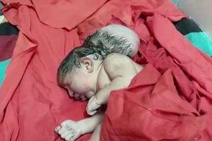 Bé gái sơ sinh chào đời với '3 đầu' như người ngoài hành tinh do dị tật hiếm gặp
