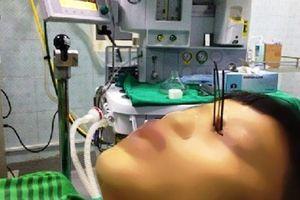 Nam sinh 13 tuổi bị 3 đinh kim loại găm xuyên vào mắt vì dùng súng tự chế