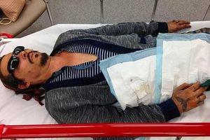 'Cướp biển' Johnny Depp tung ảnh thê thảm cáo buộc vợ cũ bạo hành
