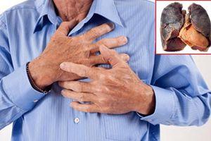 Dù đã bỏ hút thuốc nhiều năm, ung thư phổi vẫn là mối 'đe dọa'