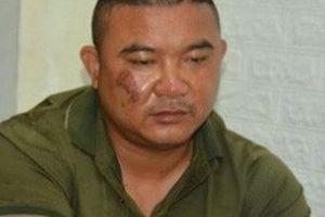 Nghệ An: Bắt kẻ dùng xăng đốt nhà khiến 5 người bị thương