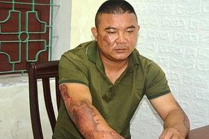 Nghệ An: Bắt giữ đối tượng phóng hỏa đốt nhà khiến 5 người nhập viện