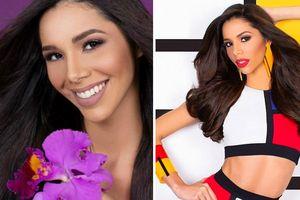 Nhan sắc rực rỡ và đường cong nóng bỏng của tân Hoa hậu Venezuela