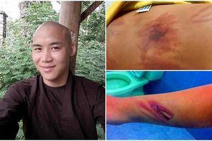 Công an thông tin vụ thầy tu đánh bé trai 11 tuổi dã man ở Bình Thuận