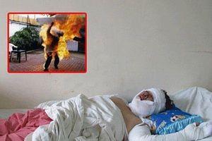 Hé lộ nguyên nhân người chồng dùng xăng tẩm đốt vợ trong đêm ở Nghệ An
