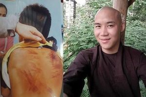 Vụ cháu bé bị thầy tu bạo hành ở Bình Thuận: Phê chuẩn khởi tố bị can Lương Việt Đức