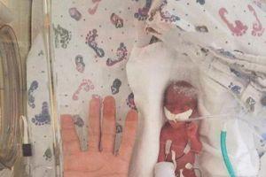 23 tuần đã 'bị đẻ', bé trai chỉ nặng vỏn vẹn 4 lạng, dài đúng bằng bàn tay bố