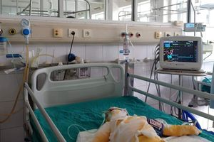 Tiên lượng sức khỏe của 3 trẻ mầm non bị bỏng do cồn rất xấu