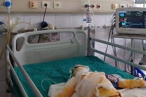 Vụ 3 trẻ mầm non bị bỏng: Sức khỏe tiên lượng rất xấu
