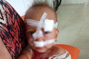 Bố mẹ cãi nhau, bé gái 2 tuổi nhập viện, khâu 12 mũi trên mặt