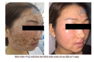 Dấu hiệu bệnh viêm da do virus – Eczema herpesticum chị em cần biết để phòng tránh