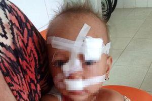 Chồng ném cốc vào vợ không may trúng mặt con khiến bé gái 2 tuổi khâu 12 mũi