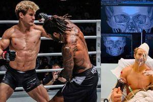 Kinh hãi trước cú đấm cực mạnh khiến võ sĩ Mỹ bị rạn xương mặt