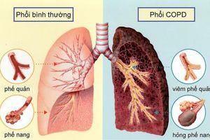 Mắc căn bệnh này chẳng khác nào ung thư phổi
