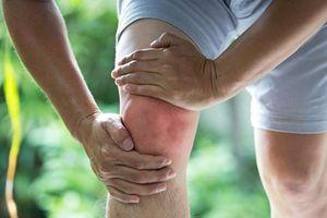 Tại sao viêm xương khớp gây đau đầu gối?
