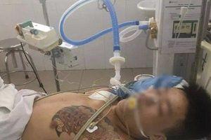 Đà Nẵng: Bị can tạm giam nhập viện nguy kịch đã tử vong