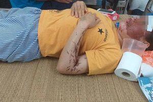 Vụ người phụ nữ bị tạt axit ở Hòa Bình: Nạn nhân từng bị dọa giết