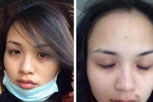 Những mỹ nhân Việt từng bị chồng đánh đập tàn tạ, nguy hiểm tính mạng