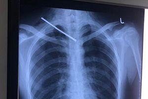 Cứu sống một thanh niên bị cây sắt đâm xuyên phổi