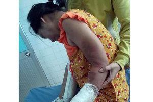 Khởi tố kẻ đánh gãy chân, tay thai phụ