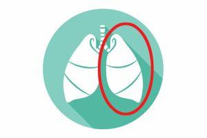 9 bộ phận nội tạng nếu thiếu thì bạn vẫn có thể sống bình thường