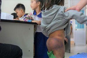 4 học sinh bị ông nội và 2 chị gái 10 tuổi đánh bầm tím khắp người vì nghịch nước