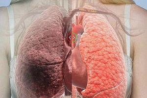 Mai Phương bị ung thư phổi: Ngừa bệnh thế nào?
