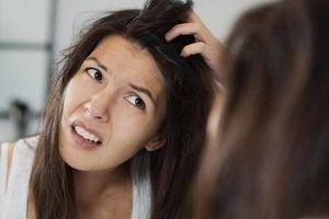 Những 'thủ phạm' gây rụng tóc