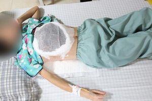 Nghe 'thầy lang' chữa ung thư, người phụ nữ bị mất một bên vú