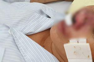 Cảnh báo căn bệnh truyền nhiễm nguy hiểm có tỷ lệ tử vong rất cao