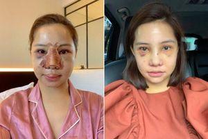 Lưu Đê Ly tung ảnh phẫu thuật biến dạng, công khai 'đập mặt' níu kéo tuổi xuân