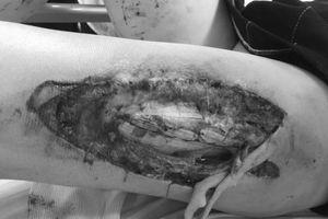 Sức khỏe nữ cổ động viện bị trúng pháo sáng trên sân Hàng Đẫy hiện ra sao?