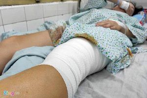 Nữ cổ động viên dính pháo sáng tại sân Hàng Đẫy bị bỏng lưu huỳnh, phải phẫu thuật 2 lần