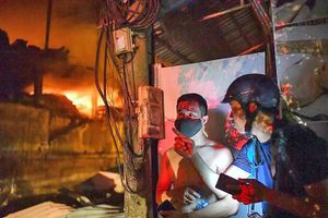 Vụ cháy công ty Rạng Đông: Kết quả khám sức khỏe của phóng viên VOV