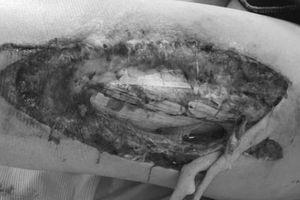 Từ vụ nữ CĐV bị trúng pháo sáng: Chuyên gia y tế cảnh báo tác hại cực kỳ nguy hiểm