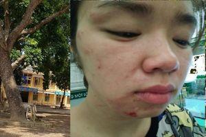 Một phụ nữ tố bị bố mẹ chồng cũ hành hung tại sân trường khi đón con