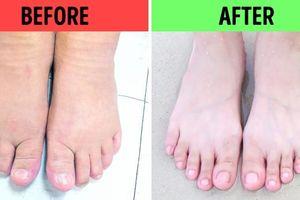 10 cách ngâm chân giúp trị một số vấn đề sức khỏe khó chịu