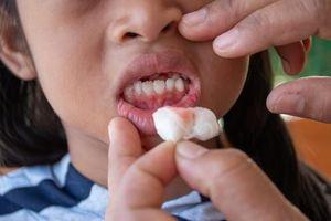 10 lời khuyên của chuyên gia về cách điều trị nướu chảy máu