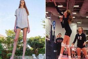 Cô gái mới 16 tuổi đã sở hữu chiều cao khủng, đôi chân dài kỷ lục 1,34m khiến ai cũng phải trầm trồ 'chân dài tới nách' là có thật