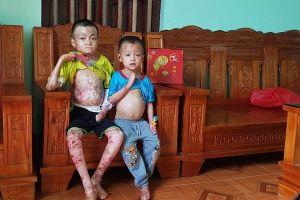 Xót xa hai anh em ở Thanh Hóa toàn thân bong tróc